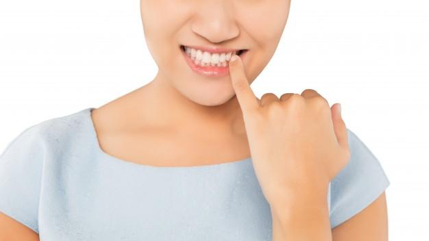 Gengivite e parodontite: come evitarle
