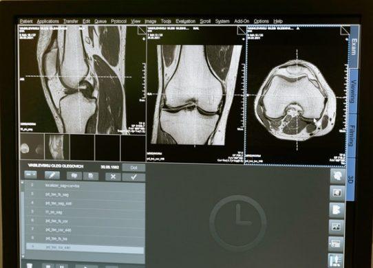 Gonartrosi dagli USA arriva l'embolizzazione del ginocchio che permette di guarire senza bisturi