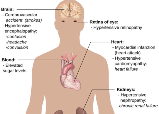 Ipertensione arteriosa le strategie innovative per raggiungere il valore pressorio ottimale