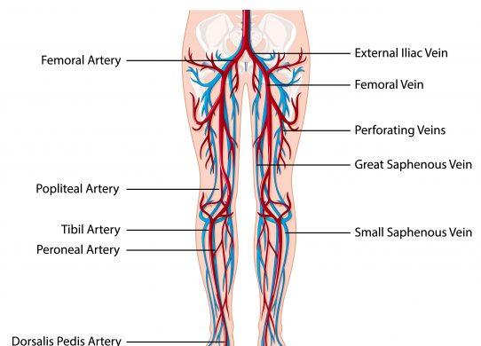 L'arteriopatia obliterante