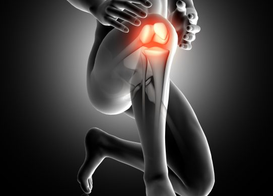 Protesi del ginocchio quando è necessaria