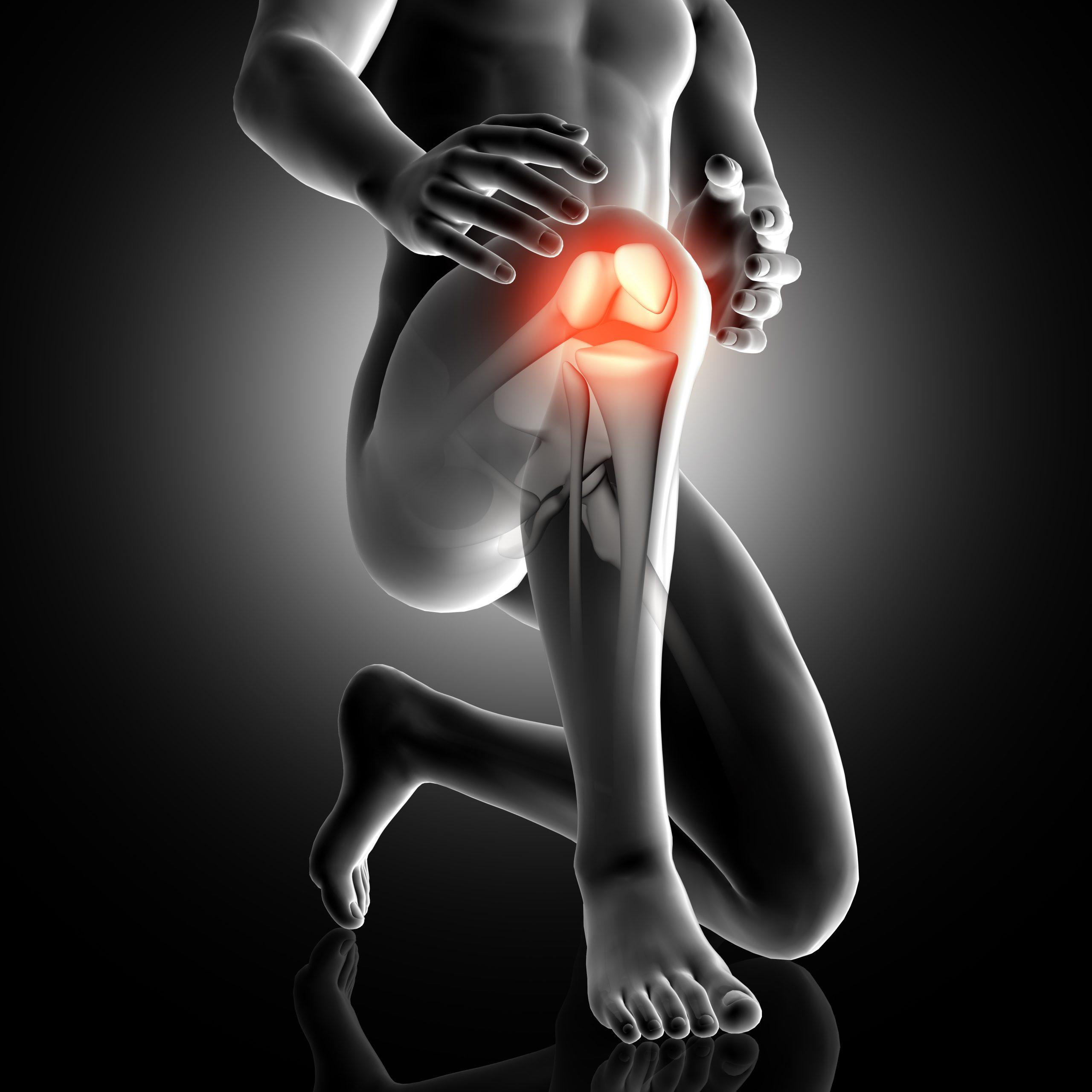 Protesi del ginocchio: quando è necessaria?