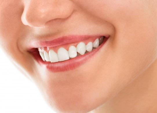 Sbiancamento dentale a casa e dal dentista