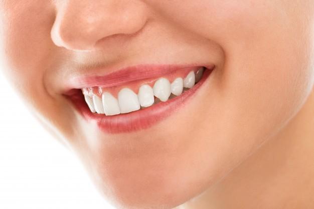 Sbiancamento dentale: a casa e dal dentista