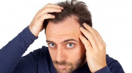 Test genetici e mineralogramma per la salute dei capelli