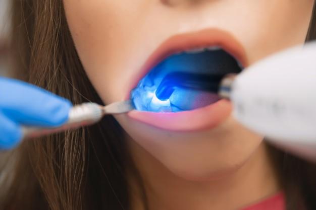Trattamento laser per parodontite