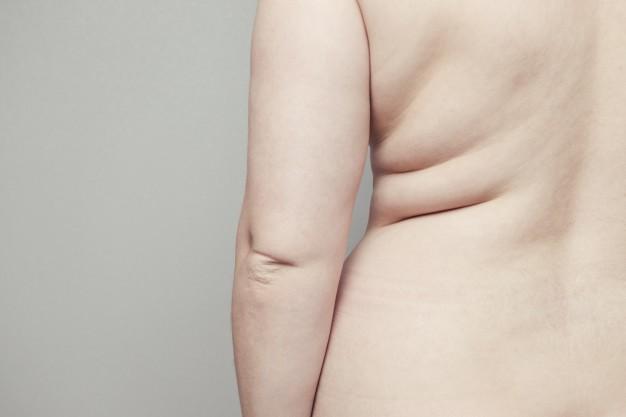 Velashape, stop a cellulite e grasso localizzato
