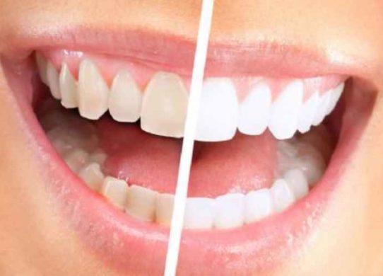 faccette dentali vantaggi e svantaggi