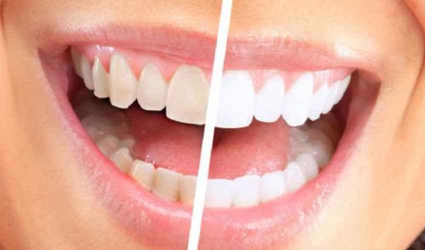 Faccette dentali: vantaggi e svantaggi