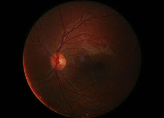 nervo oculomotorio