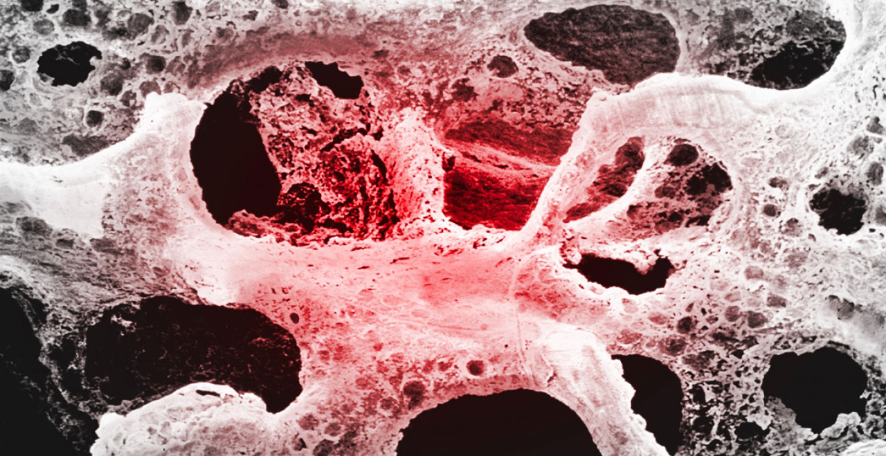 Osteoporosi: come trattarla con la magnetoterapia