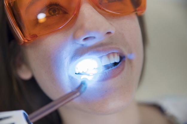 Sbiancamento dei denti: tutto ciò che c'è da sapere