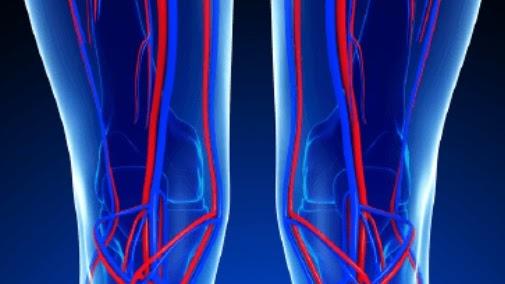 Trombosi venosa e tromboflebite: le correlazioni con il Covid-19